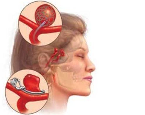Brazo robótico quirúrgico para tratamientos vasculares cerebrales